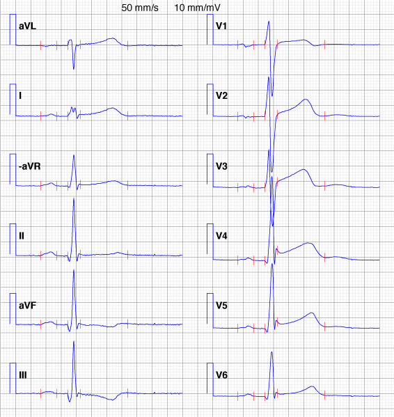 Figure 4. Osborn wave (J wave) in patient with early repolarization. This patient was 31 years old when she died from sudden cardiac death.