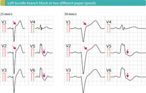 Figure 4. Left bundle branch block (LBBB) with typical ST elevations (V1–V2) and ST depressions (V5-V6).