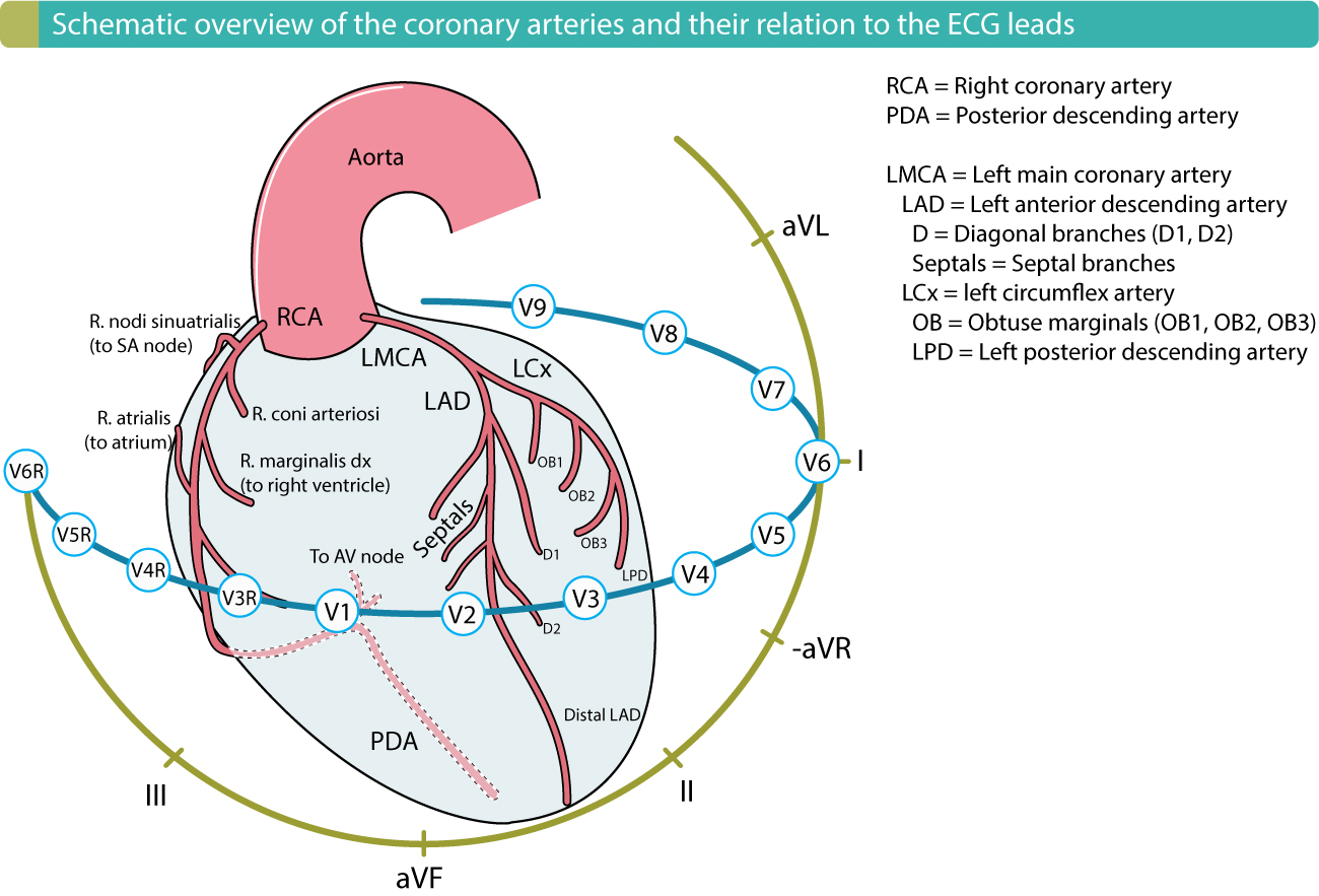 Figure 1. The coronary arteries and their relation to the ECG leads. Localization of myocardial infarction / ischemia is done by using ECG changes to determine the affected area and subsequently the occluded coronary artery (culprit).