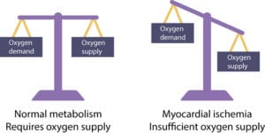 Figure 1. Myocardial cells require continues oxygen supply in order to maintain normal metabolism. If oxygen supply is less than oxygen demand, ischemia developes. Myocardial cells can switch to anaerobic metabolism and discontinue contractions in order to alleviate the ischemia. This enables the cell to endure up to 30 minutes of severe ischemia. If blood flow is not restored before 30 minutes, the cell will die. Death of myocardial cells is referred to as myocardial infarction.