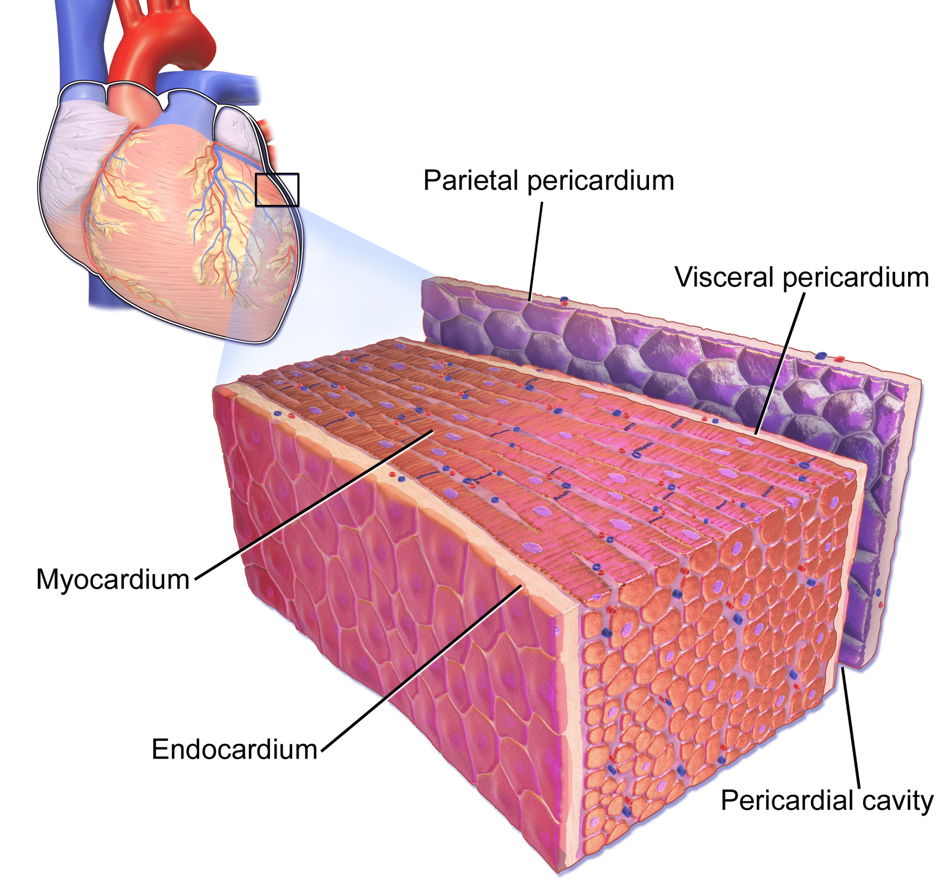 Figure 1. The pericardial sac and the myocardium. Note that pericarditis (inflammation of the pericardial sac) is difficult to discern from myocarditis (inflammation of the myocardial tissue) and because they tend to accompany each other, the term perimyocarditis is often used. Image by Bruce Blausen, Blausen Gallery 2014.