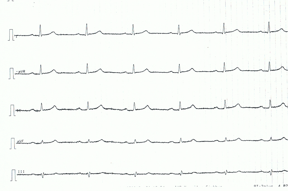 Figure 4. Limb leads of patient with acute pericarditis. Note the very discrete, but generalized, ST segment elevations, concave ST segments.
