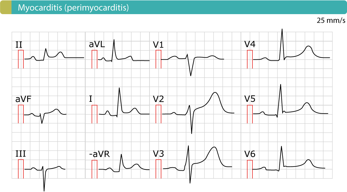 Figure 2. The ECG in acute pericarditis (myocarditis, perimyocarditis). As evident there are generalized ST segment elevations. There are no reciprocal ST segment depressions and no simultaneous T-wave inversions (negative T-waves).