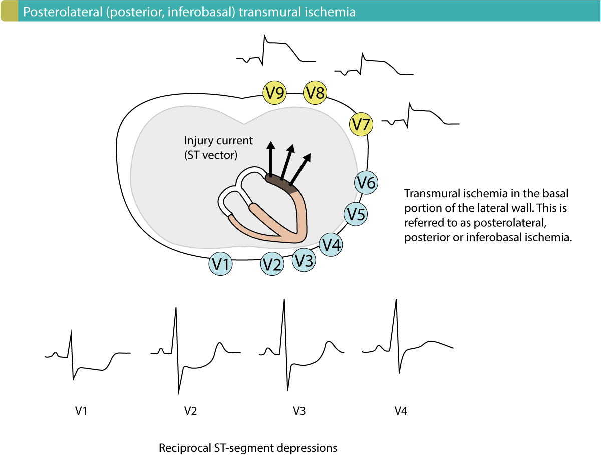 Figure 1. Posterolateral (posterior, inferobasal) transmural ischemia causes reciprocal ST-segment depressions in V1–V3 (ocasionally V4). Leads V7–V9 must be placed to reveal the ST-segment elevations.