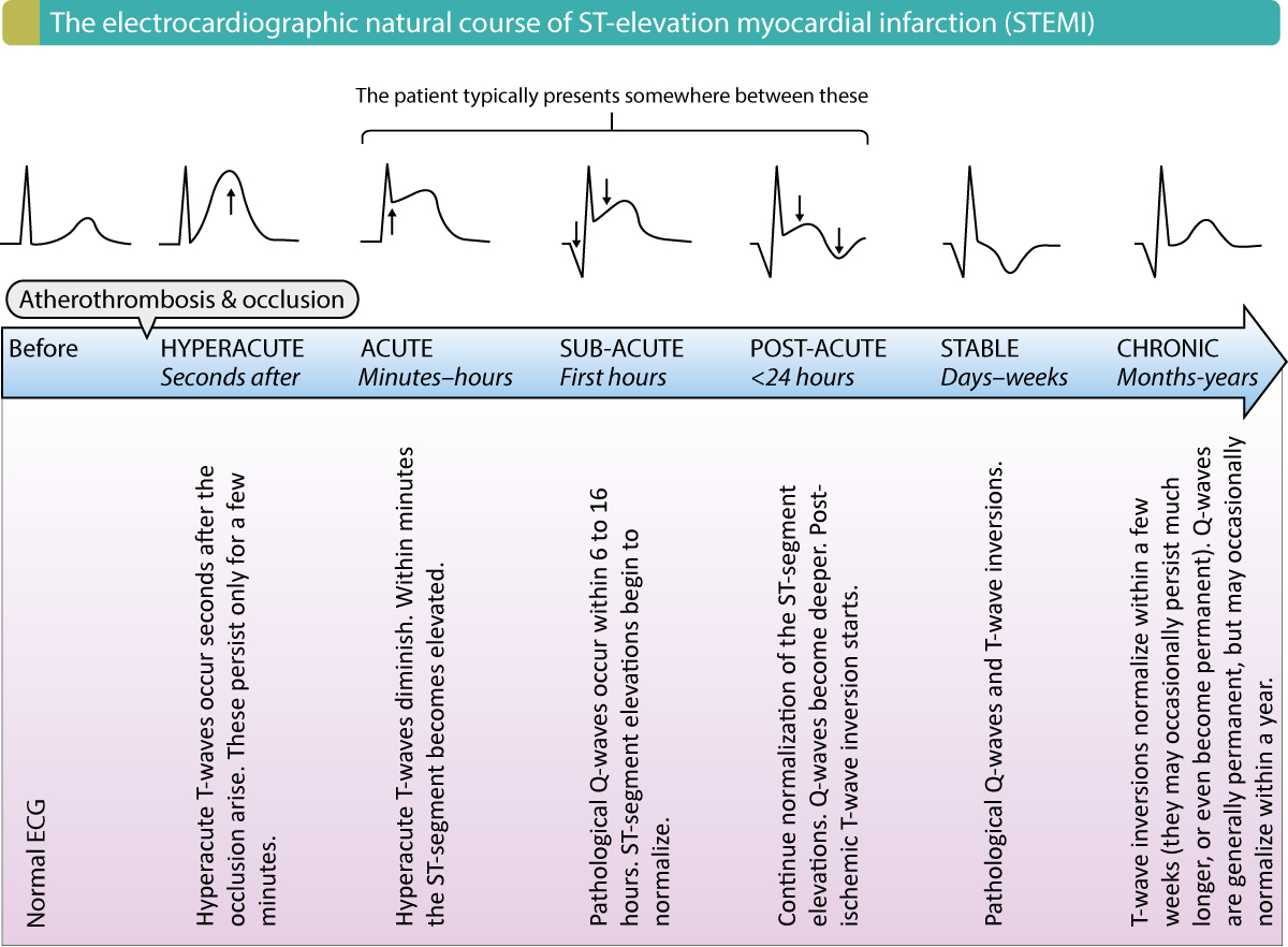 Figure 2. The electrocardiographic natural course in STEMI (ST elevation myocardial infarction).