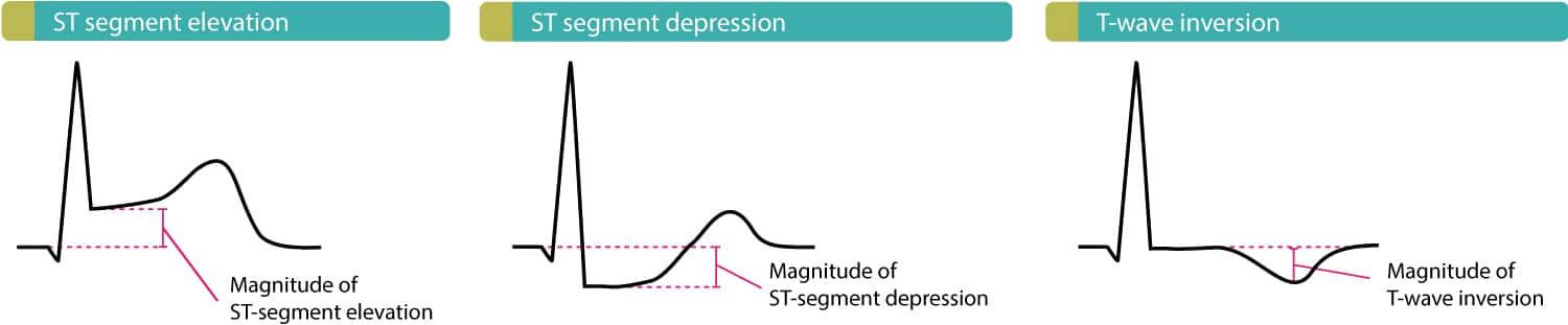 Figure 2. This figure illustrates ST elevations, ST depressions and T-wave inversions. Patients with STEMI (STE-ACS) always display ST elevations but they may also display ST depressions and/or T-wave inversions. Patients with NSTE-ACS (NSTEMI, unstable angina), on the other hand, may only display ST depressions and/or T-wave inversions.