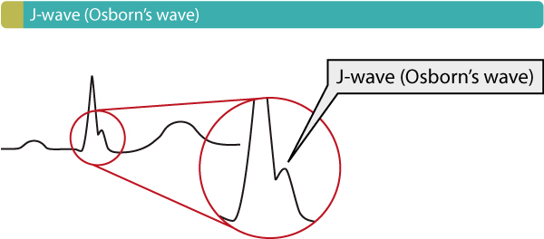 Figure 14. Osborn's wave (J-wave).