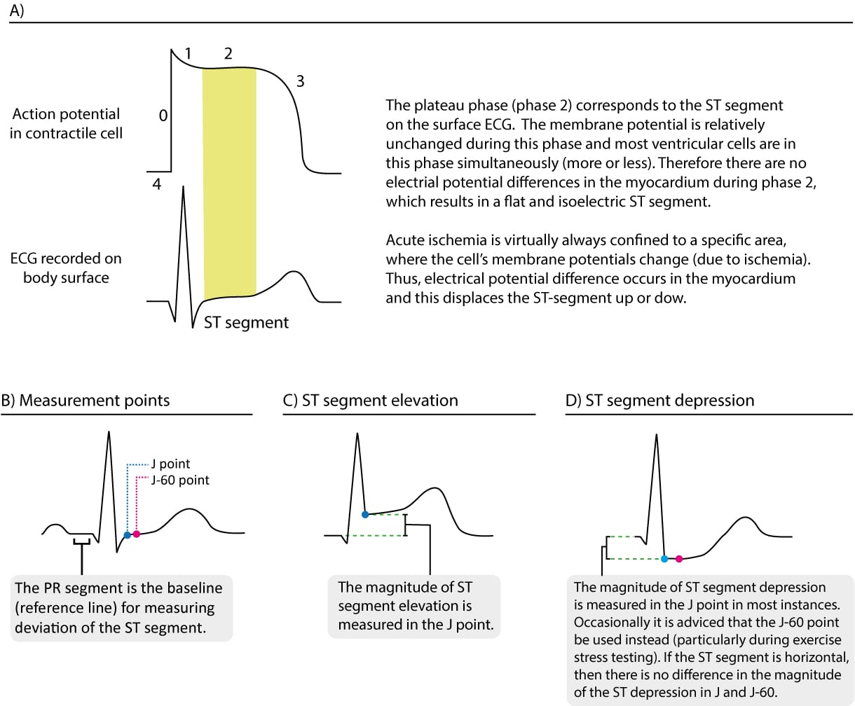 Figure 1. (A) The relation between the action potential and the ECG curve. Myocardial ischemia primarily affects the repolarization, which is reflected on ST-T changes on the ECG. (B) Note that the reference level for measuring deviation (elevation or depression) of the ST segment is the PR segment (the terminal portion of the PR interval). (C) and (D) Shows how to measure the magnitude of ST segment elevation and ST segment depression. The J 60 point is located 60 ms after the J point.