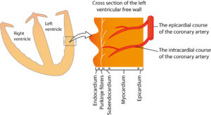 Figure 3. STE-ACS (STEMI) is caused by a complete occlusion, which means that there is no flow in the artery. The ischemia will affect all layers of the myocardium, from the endocardium to the epicardium (in the region supplied by the occluded artery). This type of ischemia, which affects all myocardial layers, is referred to as transmural ischemia.