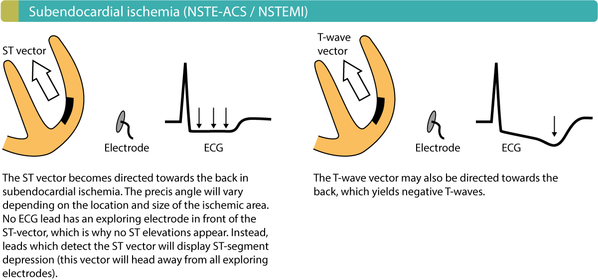 Figure 4. Injury currents in subendocardial ischemia. These are the hallmarks of non-ST segment elevation myocardial infarction (NSTEMI/Non-STEMI).