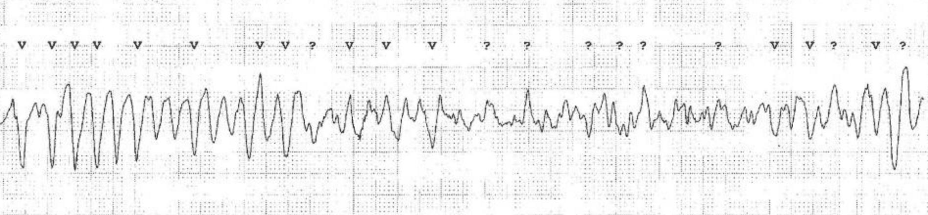 Torsade de Pointes ventricular tachycardia degenerating into ventricular fibrillation.