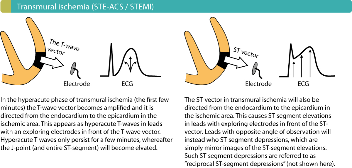 Figure 3. Injury currents in transmural myocardial ischemia. Note that ST segment elevation myocardial infarction (STEMI/STE-ACS) usually also causes ST-segment depressions in leads that are opposite to the leads displaying the ST segment elevations. However, the primary ECG change in STEMI/STE-ACS is the ST segment elevations.