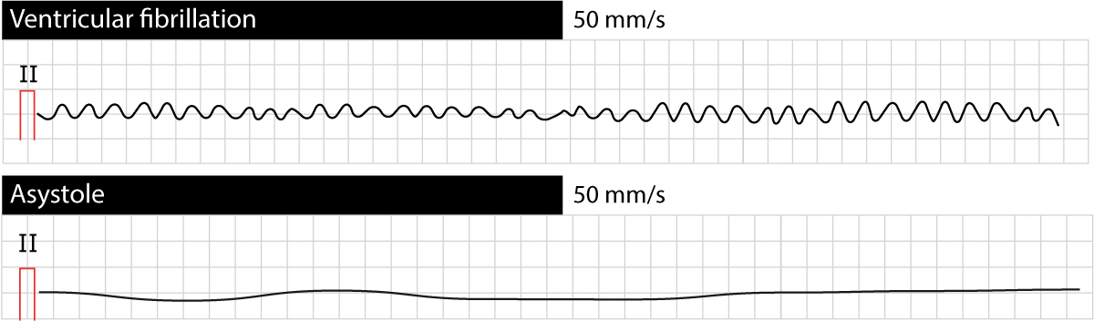Figure 1. Ventricular fibrillation and asystole.