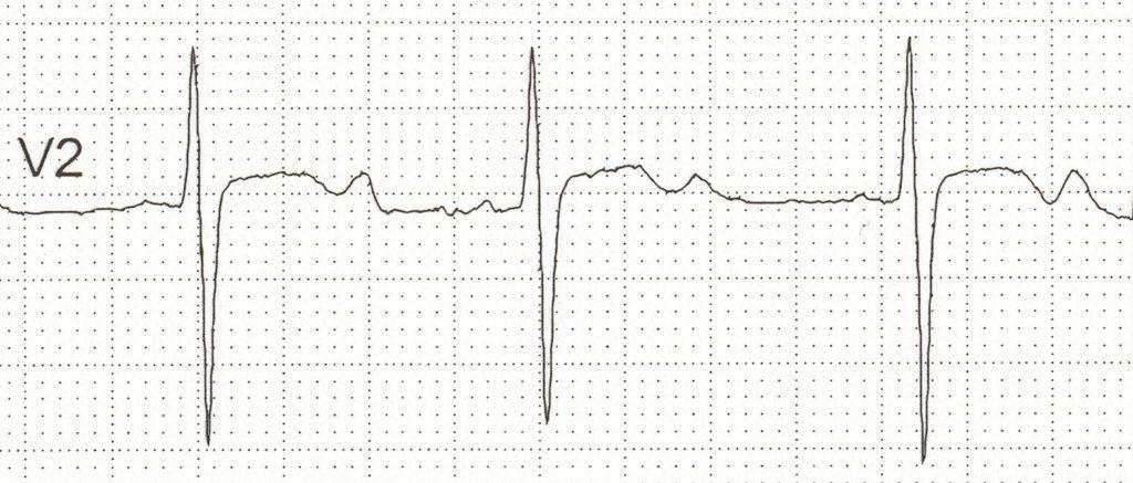 Figure 3. Hypokalemia.