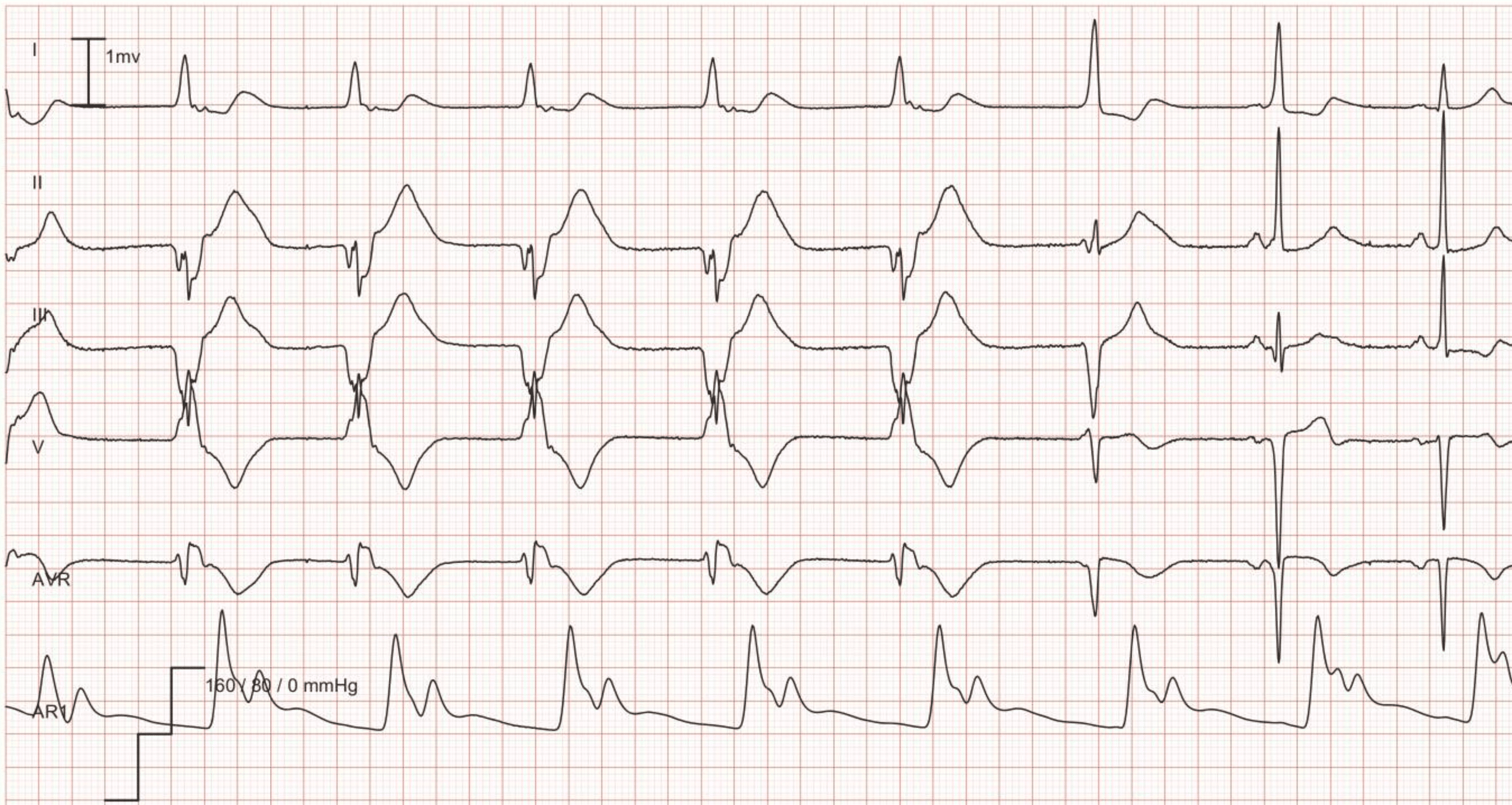ECG Example: Idioventricular rhythm (accelerated ventricular rhythm) – Accelerated ventricular rhythm at a rate of 56 for the first 5 beats followed by 2 fusion beats; the last 2 beats are normal sinus rhythm.
