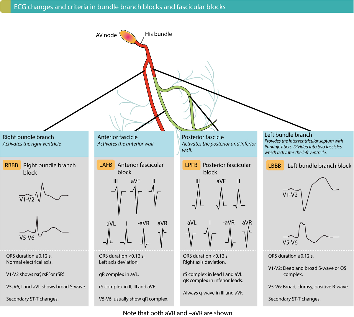 Figure 3. Overview of criteria and ECG changes in bundle branch blocks and fascicular blocks. All these intraventricular conduction delays are common and therefore important to recognize.
