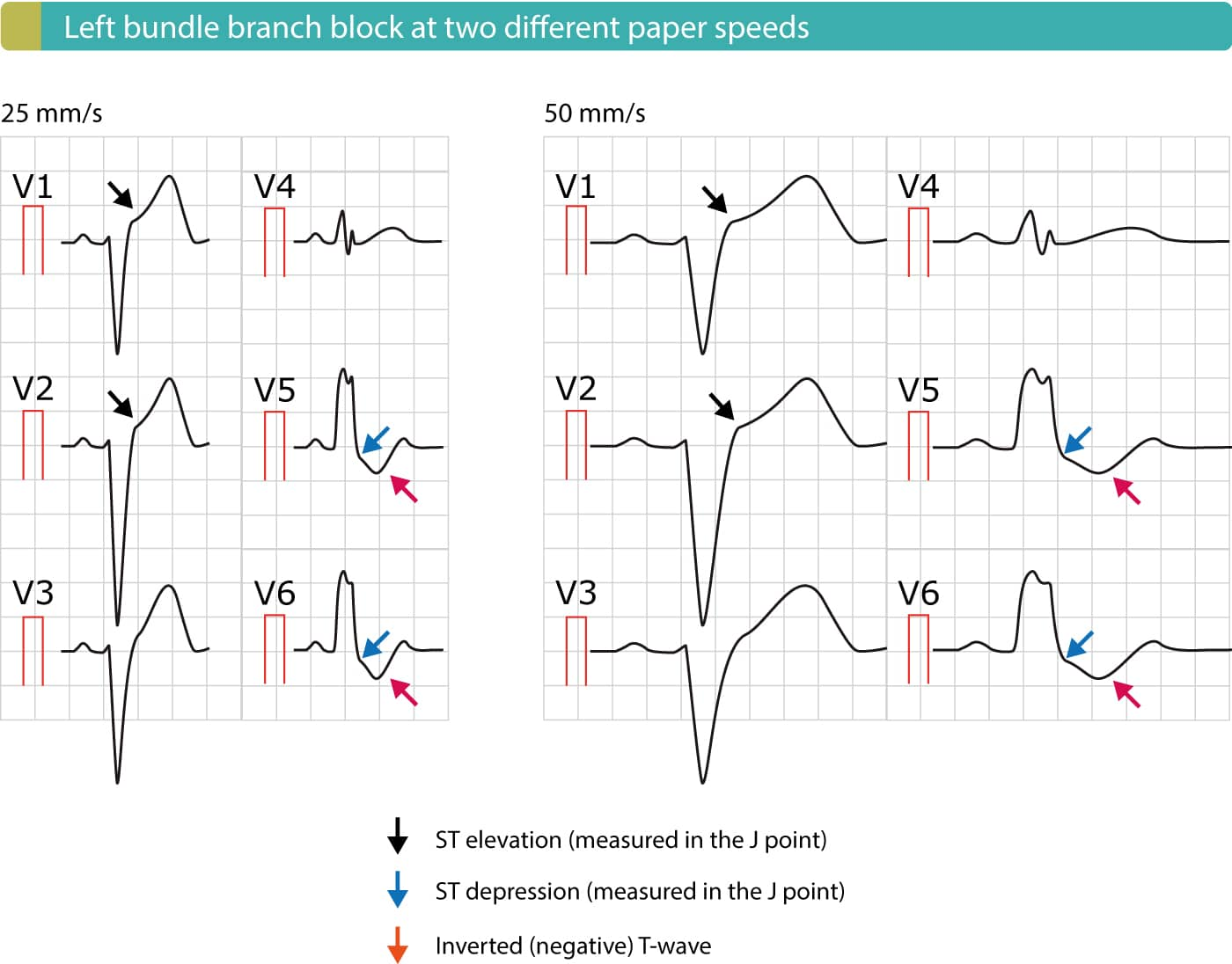 Figure 2. Left bundle branch block (LBBB) at two different paper speeds (25 mm/s and 50 mm/s). Because activation (depolarization) of the left ventricle is abnormal in the presence of LBBB, the recovery (repolarization) will also be abnormal. Abnormal depolarization manifests as an abnormal QRS complex with duration 120 ms or more. Abnormal repolarization manifests with ST-T changes, including ST elevations, ST depressions and negative T-waves.
