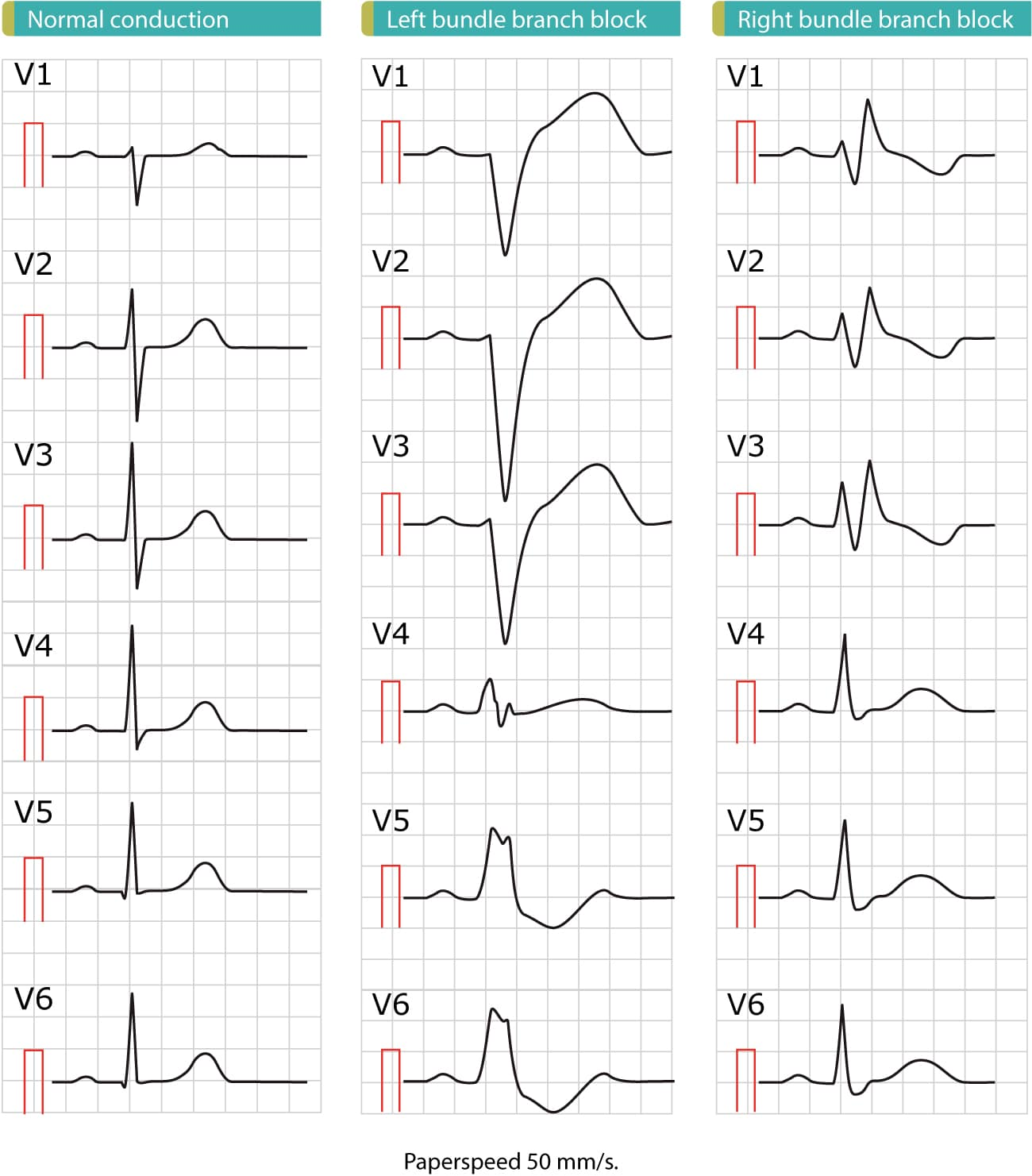 Figure 1. These ECGs show the difference between normal conduction, left bundle branch block (LBBB) and right bundle branch block (RBBB). As evident from these ECGs, the cardinal difference between normal conduction and bundle branch blocks is the QRS duration: bundle branch blocks are caused by dysfunctional bundle branches, which results in slow (and abnormal) activation of ventricular myocardium and thus prolonged QRS duration. A QRS duration of 120 ms (0.12 s) is required to diagnose bundle branch block. Also note that both left bundle branch block (LBBB) and right bundle branch block (RBBB) cause marked ST-T changes, including ST elevations, ST depressions and inverted (negative) T-waves. These ST-T changes are due to abnormal repolarization and they are expected to occur in both LBBB and RBBB. Finally, note that there are marked difference in the ECG pattern between LBBB and RBBB. These ECGs are printed at paperspeed 50 mm/s.