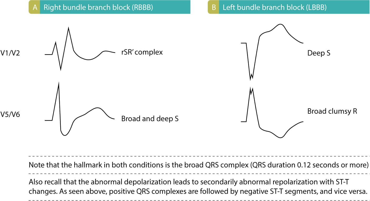 Figure 3. This figure illustrates ECG patterns in LBBB and RBBB. As seen, LBBB is characterized by deep and broad S-waves in V1/V2 and broad and clumsy R-waves in V5/V6. RBBB is characterized by rSR' complex in V1/V2, meaning that there are two R-waves and a large S-wave. Furthermore, the S-wave in V5/V6 is typically very broad in the presence of RBBB.