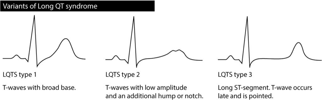 Figure 3. Characteristics of T-waves in different types of LQTS (long QT syndrome).