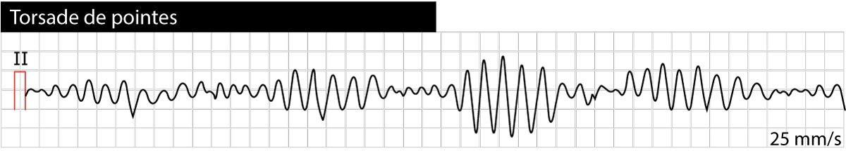 Figure 2. Torsade de pointes (polymorphic ventricular tachycardia) caused by long QT syndrome.