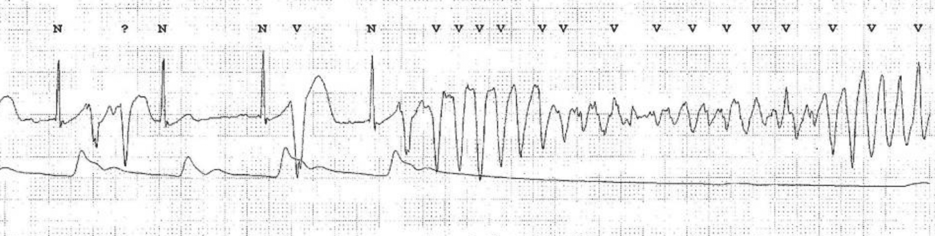 ECG showing an episode of sinus rhythm (with multiple ventricular premature beats) spontaneously converting to Torsade de Pointes ventricular tachycardia. Notice how arterial blood pressure (ABP) drops at the onset of TdP. ECG by Nakstad et al (Scand J Trauma Resusc Emerg Med. 2010; 18: 7)
