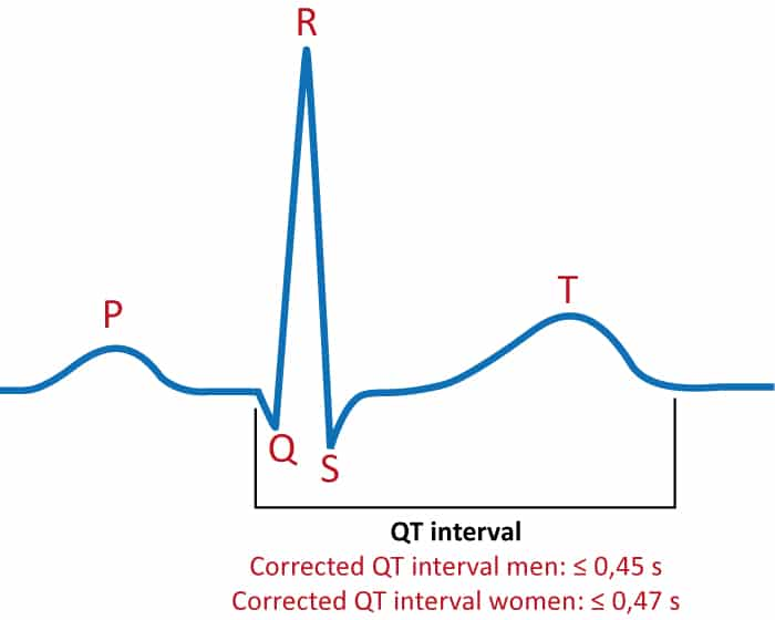 Figure 1. The QT interval on the ECG.