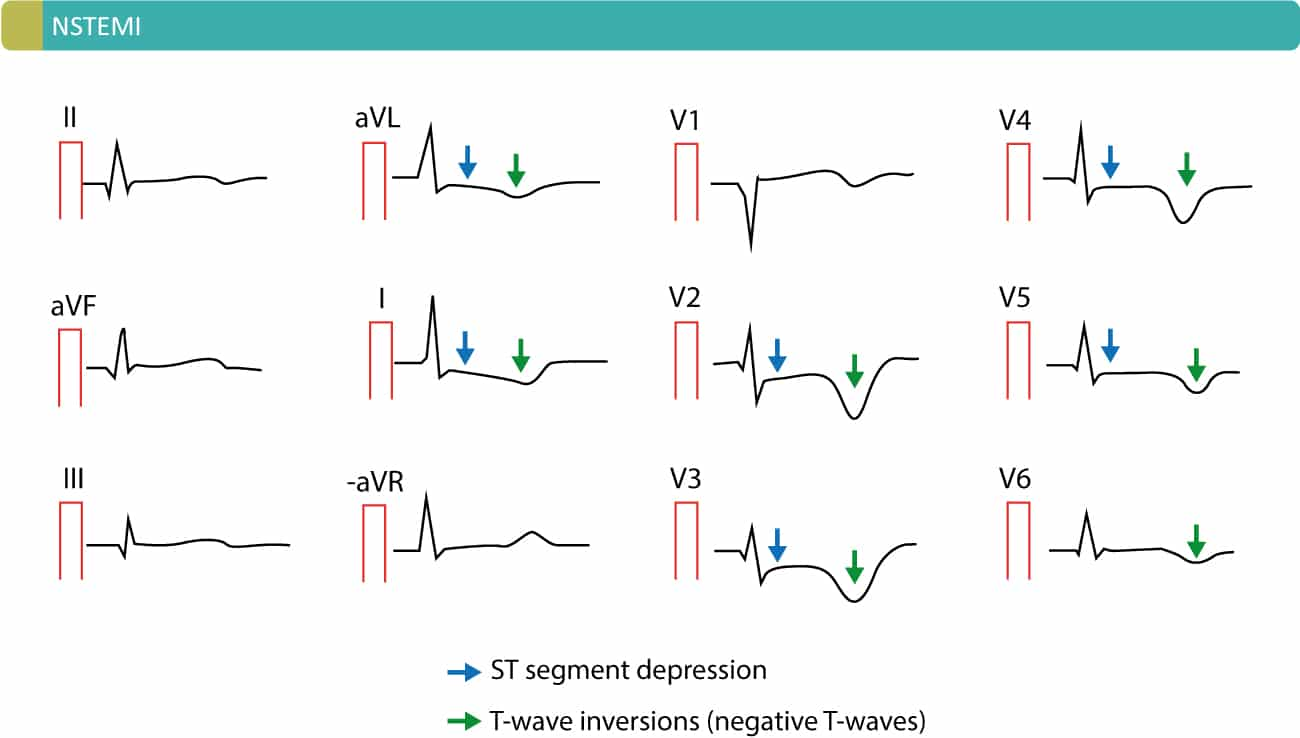 Figure 5. Example of patient with NSTEMI. This patient displays widespread ST depressions and deep T-wave inversions in the chest leads, as well as aVL and I.