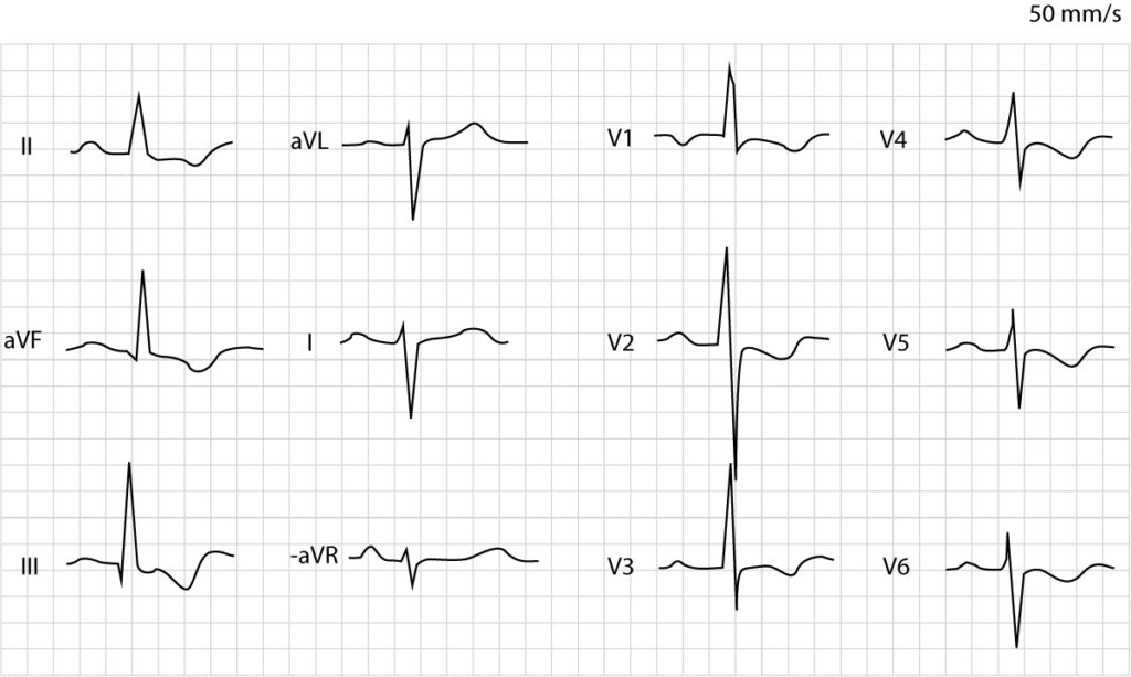 Figure 2. Right ventricular hypertrophy.