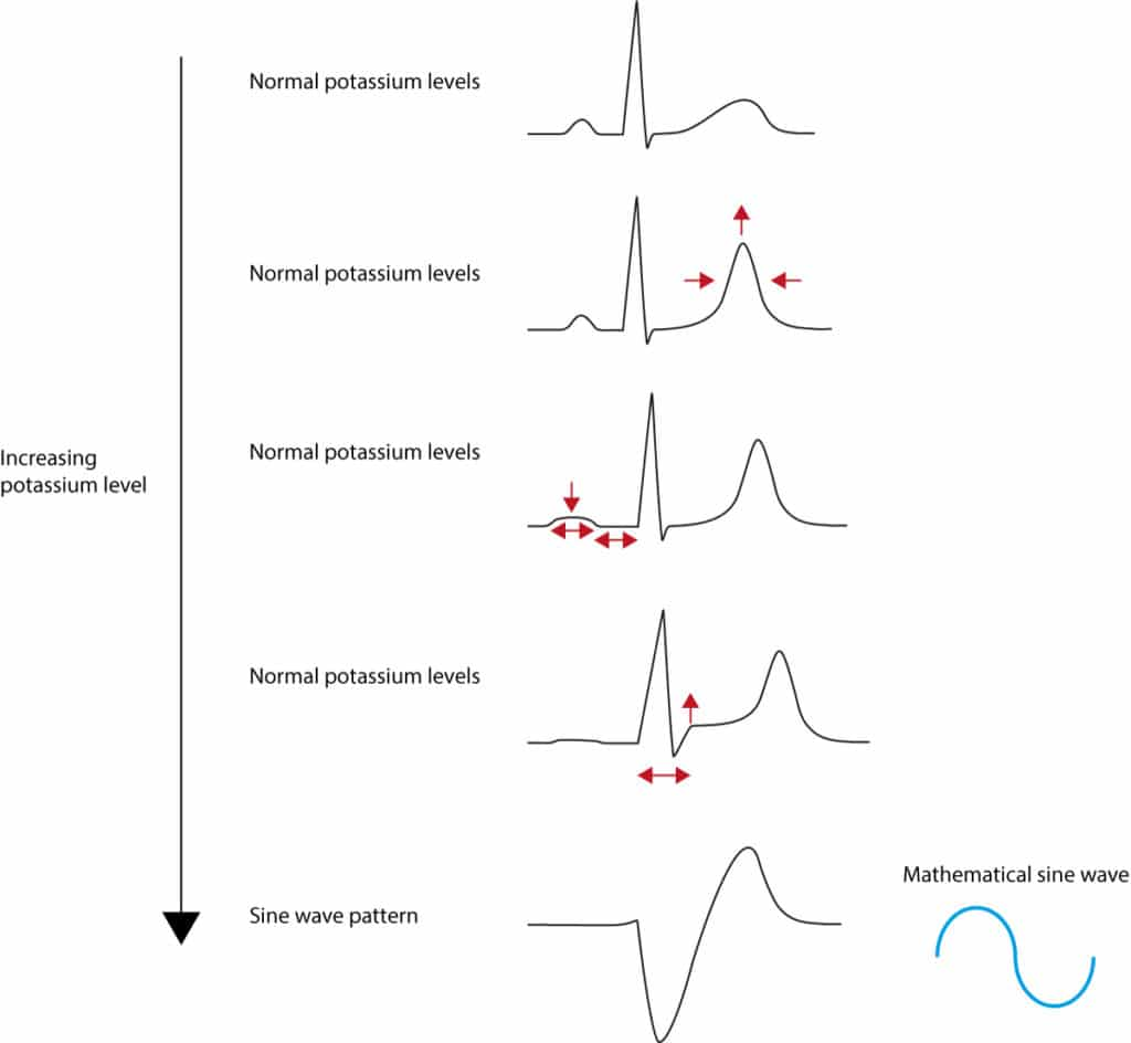 Figure 1. ECG changes seen in hyperkalaemia.