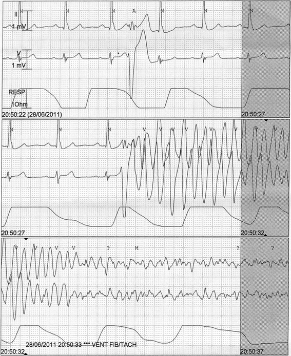 ECG showing ventricular tachycardia degenerating into ventricular fibrillation. By Bagnall et al: BMC Medical Genetics 15 (2014): 99.