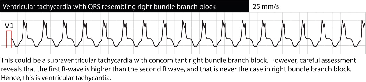 Figure 4. Ventricular tachycardia with right bundle branch block (RBBB) morphology. However, the first R-wave is larger than the second R-wave, which is not the case in RBBB. This suggests that the rhythm is not a supraventricular tachycardia conducted with RBBB, but rather ventricular tachycardia (VT).