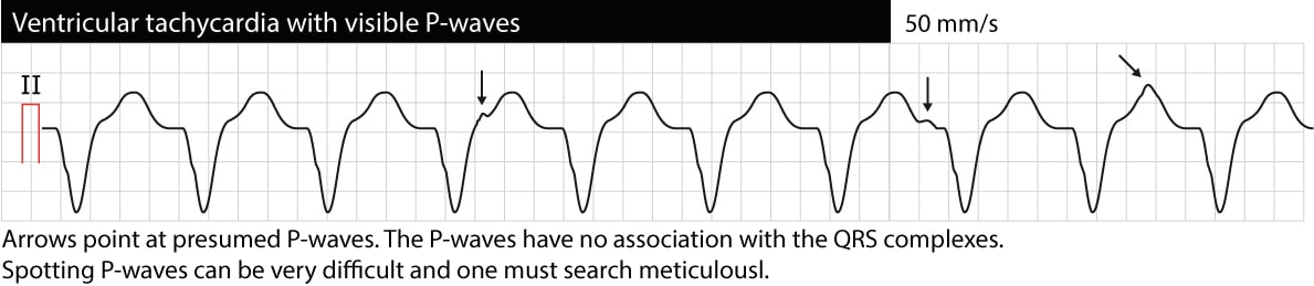 "Figure 1. Monomorphic ventricular tachycardia (VT, VTach). P-waves are visible but they do not have any relation to the QRS complexes. This situation is referred to as ""AV dissociation"" and indicates that atrial and ventricular activity and independent. AV dissociation confirms that the arrhythmia is ventricular tachycardia. However, AV dissociation is frequently difficult to spot."