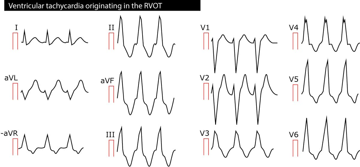 Figure 2. Ventricular tachycardia (VT) originating in the right ventricular outflow tract (RVOT).