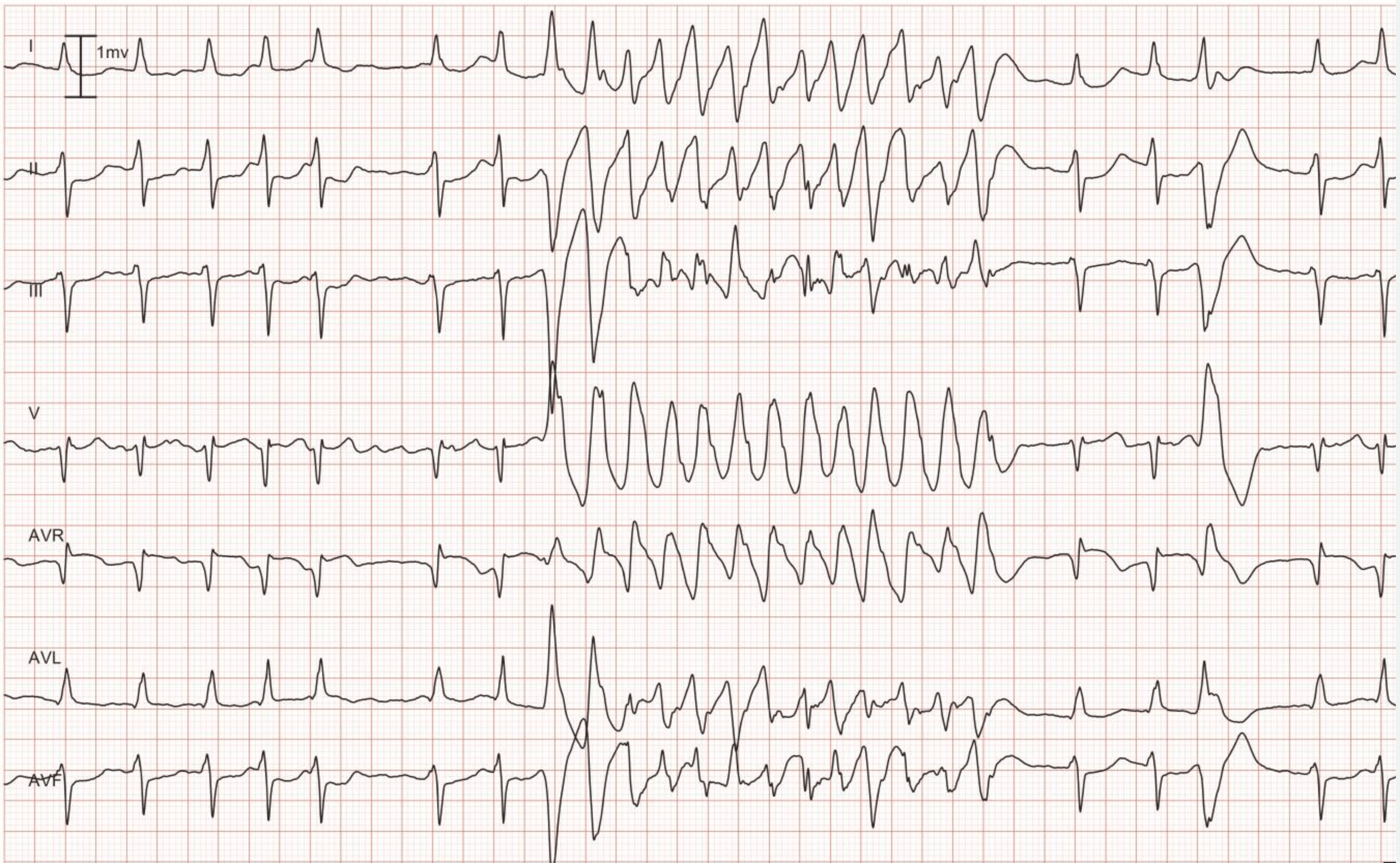 Figure 8. Lead I, II, III, V1 aVR, aVL and aVF. As seen in the beginning of the recording, the patient has an underlying rhythm of atrial fibrillation. The atrial fibrillation is interrupted by a rapid and regular tachycardia with wide QRS complex. Note the 4th beat from the end; it is a premature ventricular beat and its QRS morphology is identical to the QRS seen during the tachycardia. Hence, the tachycardia also originates from the ventricles, which implies that it is ventricular tachycardia (VT).