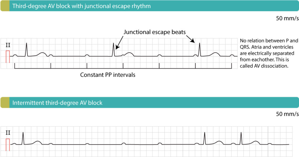 Figure 1. Third-degree AV block (complete heart block, AV dissociation).