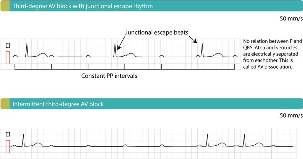Figure 1. Third-degree AV block (complete heart block, AV dissociation).