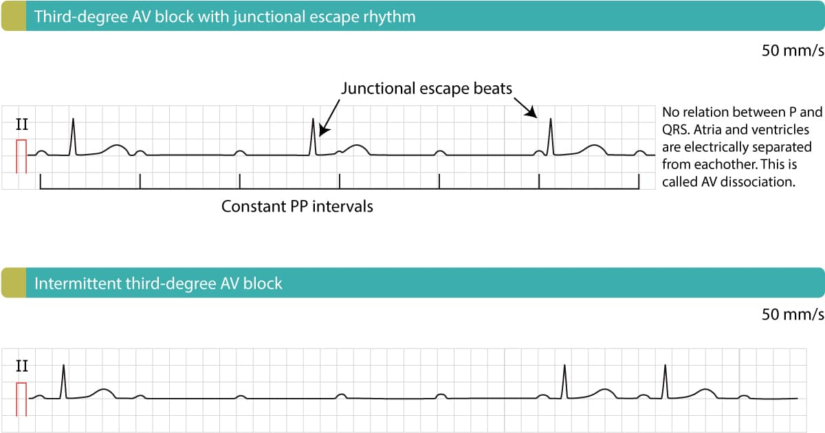 Third-degree AV block (complete heart block, AV dissociation)