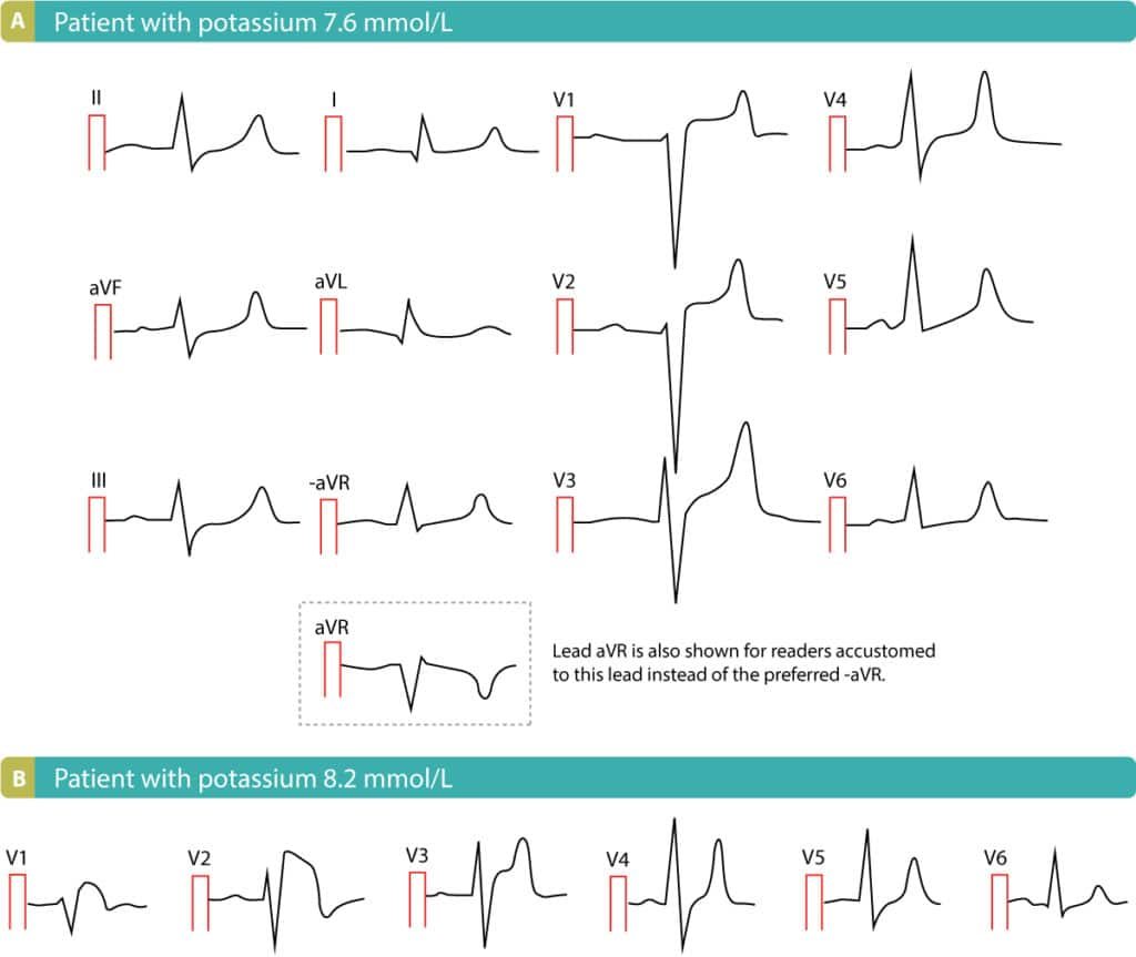 Figure 9. ST-segment elevations due to hyperkalemia. ECGs from Life in the Fast Lane.