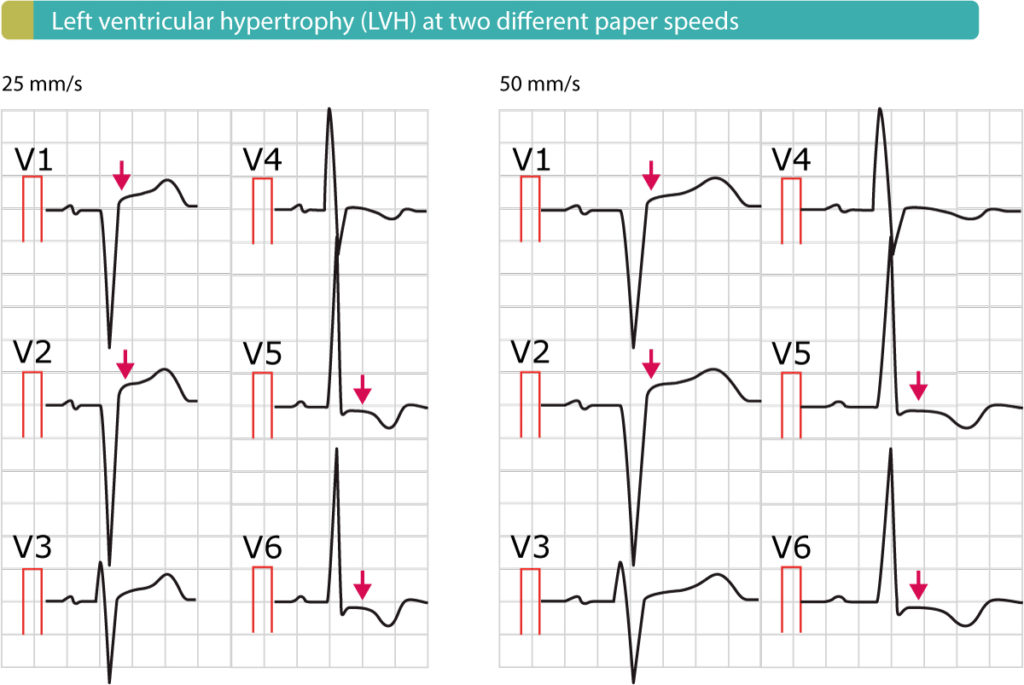 Figure 6. Left ventricular hypertrophy causes secondary ST-T- changes, including ST-segment elevations.