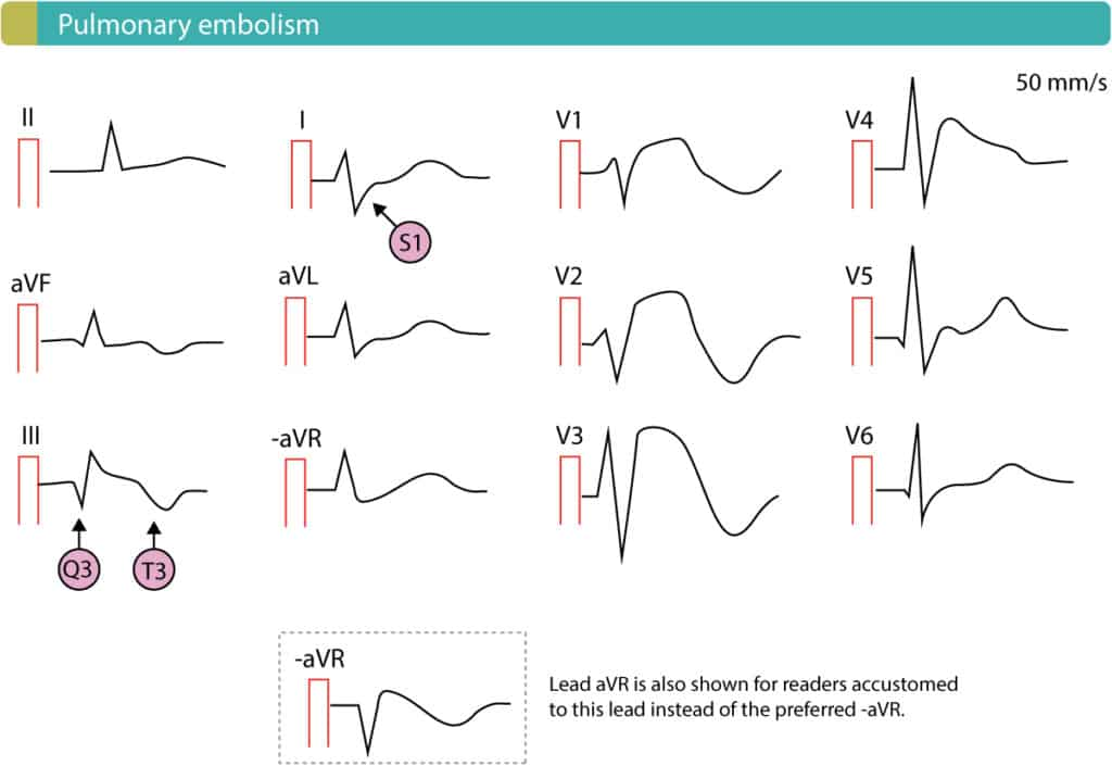 Figure 13. Pulmonary embolism with ST-segment elevations in right sided chest leads.