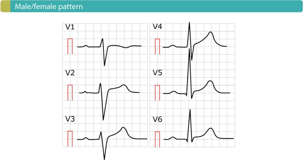 "Figure 4. Male/female pattern. Also called ""Normal ST segment elevation""."