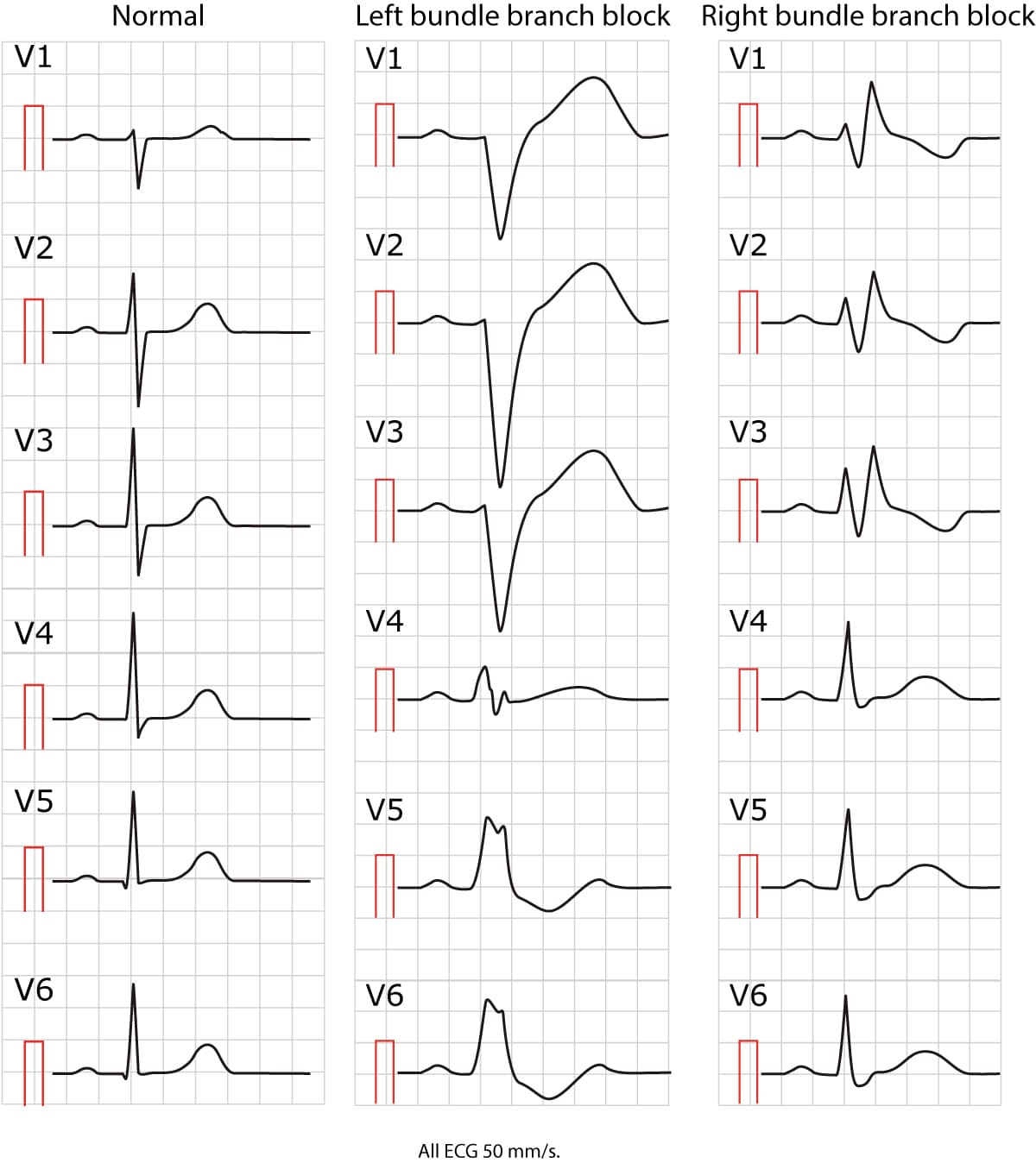 Figure 1. Normal ECG, Left Bundle Branch Block And Right
