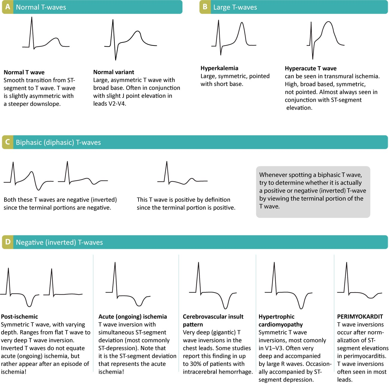 T-waves in ischemia: hyperacute, inversions (negative), Wellens sign & de Winters sign