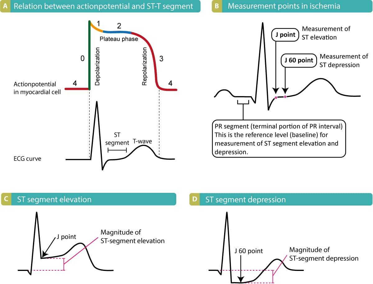 Figure 1. (A) The relation between the action potential and the ECG curve. Ischemia primarily affects the repolarization, which is reflected on ST-T changes on the ECG curve. (B) Note that the reference level for measuring deviation (elevation or depression) of the ST segment is the PR segment (the terminal portion of the PR interval). (C) and (D) Shows how to measure the magnitude of ST segment elevation and depression.
