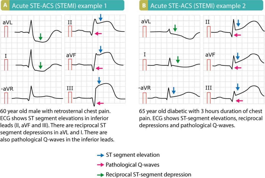 Figure 3. Examples of STE-ACS (STEMI). Note that these patients presented with pathological Q-waves, which means that these ECGs were recorded several hours after symptom onset or those are signs of old infarction.