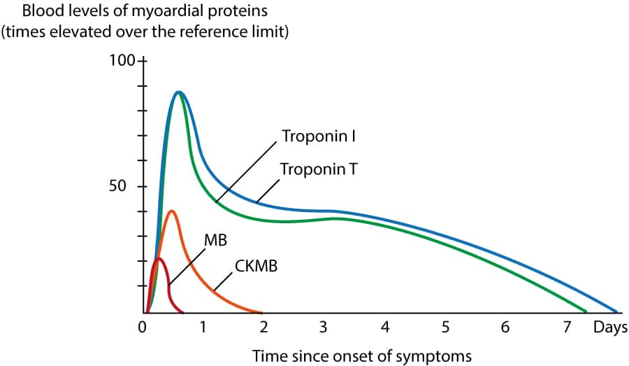 Figure 2. Levels of myocardial proteins in the circulation following myocardial infarction. Note that cardiac troponins peak after 24 to 28 hours after initiation of infarction.