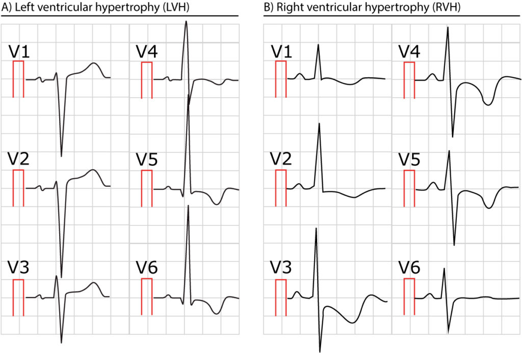 The ECG in left ventricular hypertrophy (LVH): criteria and ...