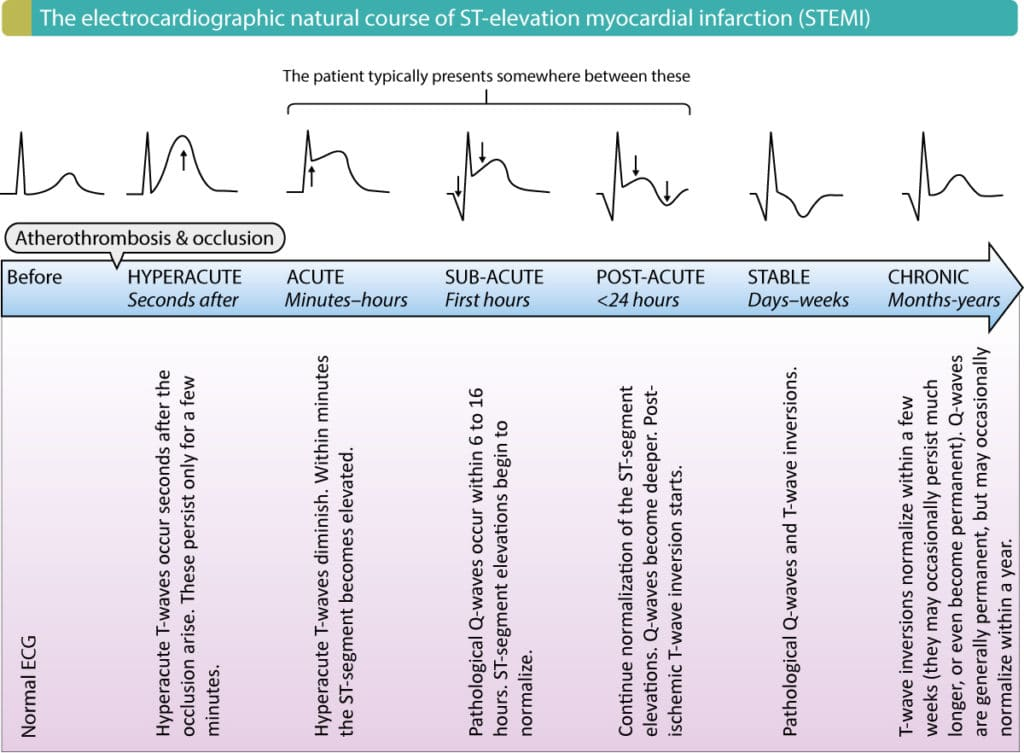 Figure 1. Normalization of ST-segment elevation and T-wave changes during STE-ACS/STEMI.
