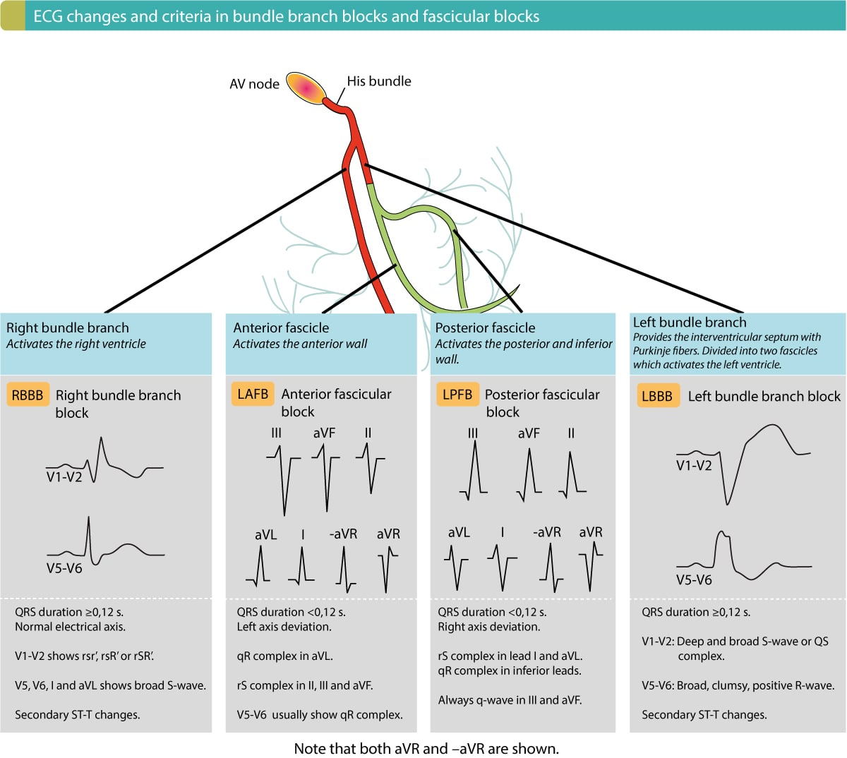 Overview of intraventricular conduction delay defect ecg learning overview of criteria and ecg changes in bundle branch blocks and fascicular blocks ccuart Images